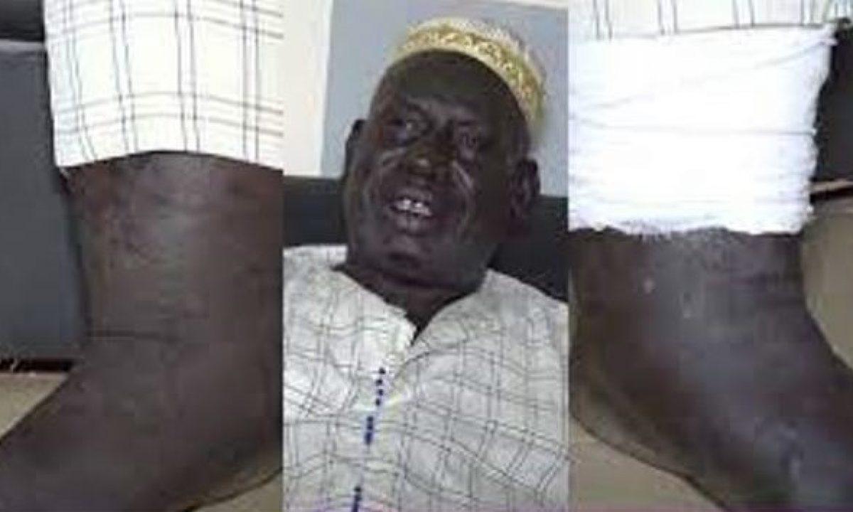 """Le cri de cœur de Mohamed Aly, ancien lutteur: """"Je n'ai pas 215000 Fcfa  pour des radios et analyses"""" (vidéo) -"""